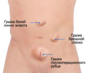Симптомы и лечение грыжи живота