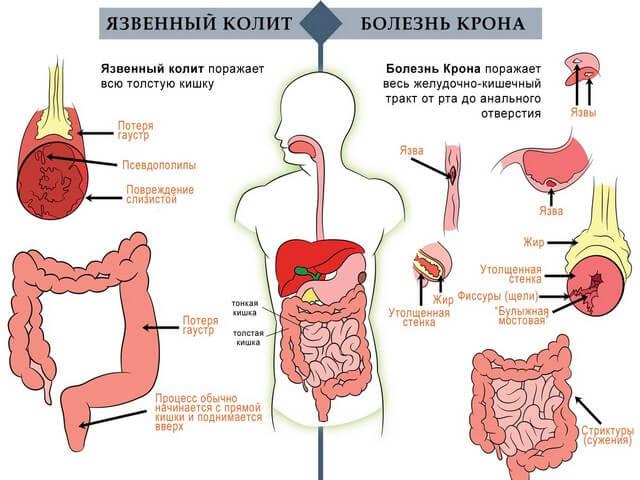 Боль в левом боку на уровне талии: основные причины и лечение, первая помощь