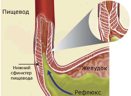 Симптомы заболевания и лечение недостаточности кардии желудка