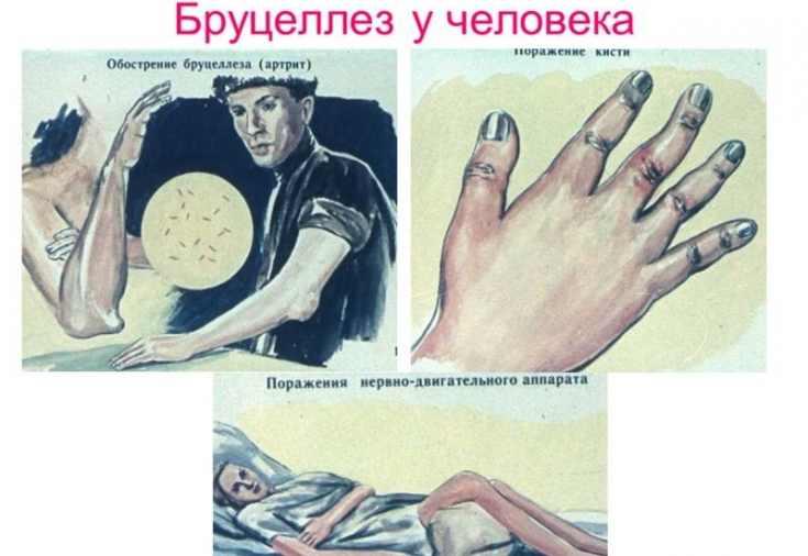 Бруцеллез у человека фото