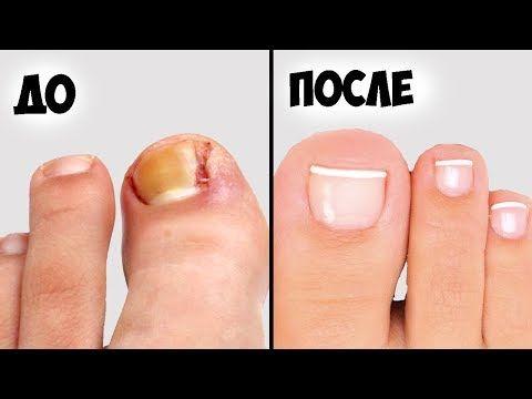 Вросший ноготь на большом пальце ноги лечение удаление