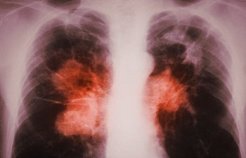 Как правильно питаться при туберкулезе: витамины и минералы