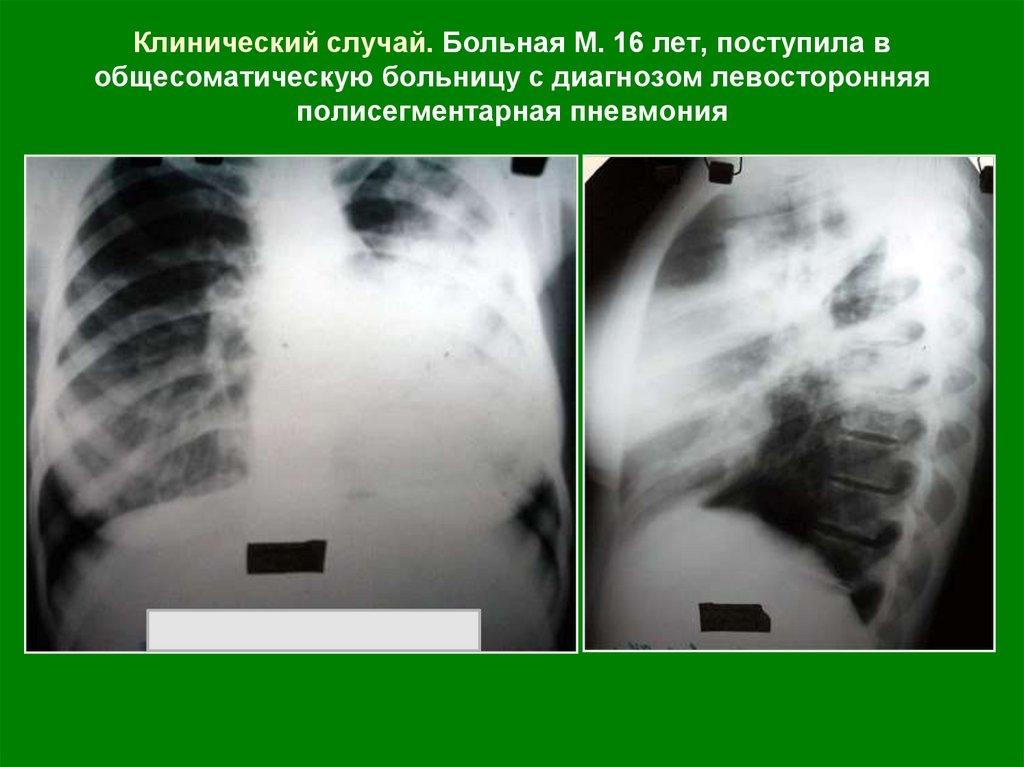 Самые эффективные антибиотики для лечения туберкулеза