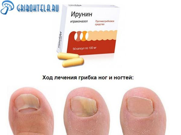 Ирунин от грибка ногтей