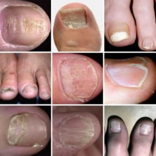 Почему на ногтях появляются чёрные полоски?