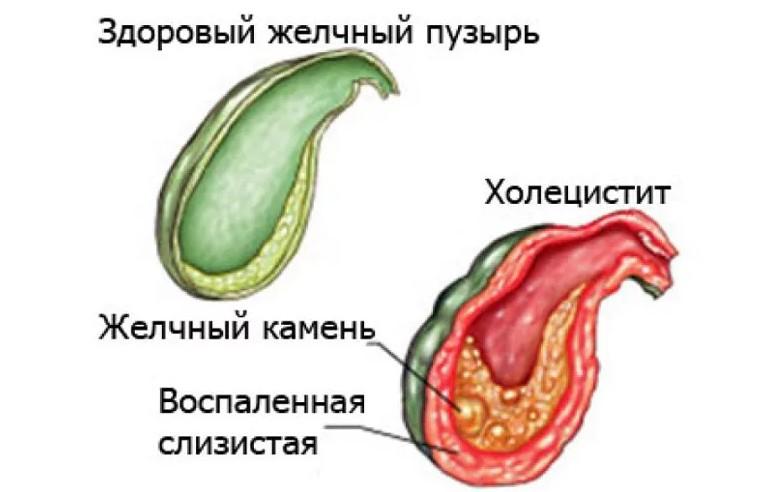 Желчный пузырь: функции, основные заболевания и лечение