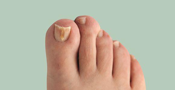 Онихомикоз ногтей: симптомы, как и чем лечить