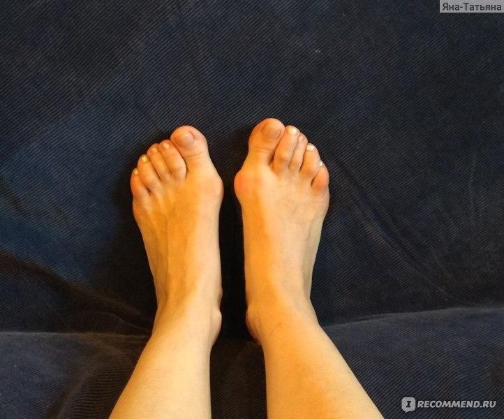 Фиксатор для косточки на большом пальце ноги - отзывы, обзор
