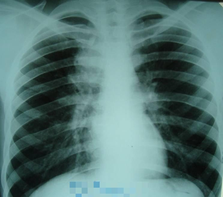 Туберкулез при беременности: риски для матери и плода, лечение
