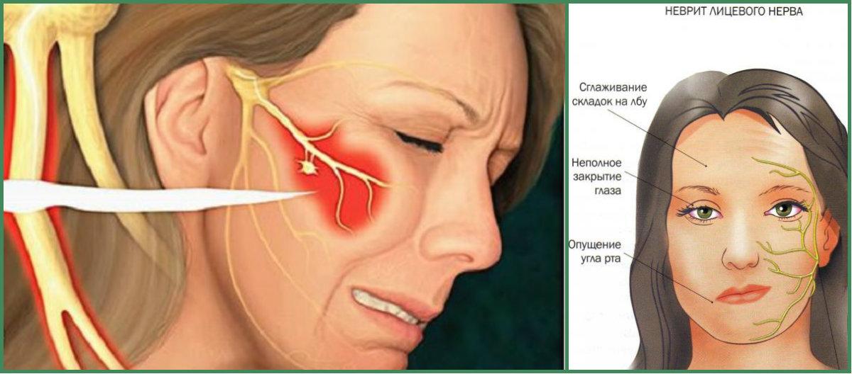 Парез, паралич и нейропатия лицевого нерва