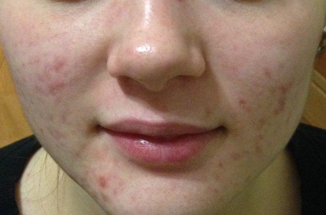 Себорейный дерматит: фото, причины, лечение