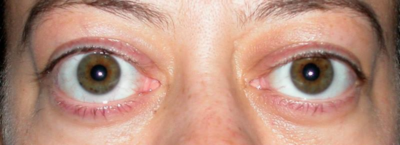 Экзофтальм — причины, симптомы, диагностика и лечение — симптомы
