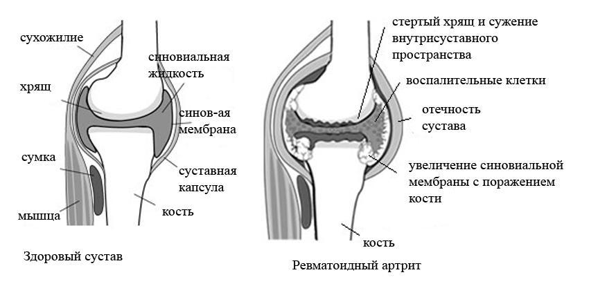 Ревматоидный артрит. причины, симптомы, современная диагностика и эффективное лечение болезни.