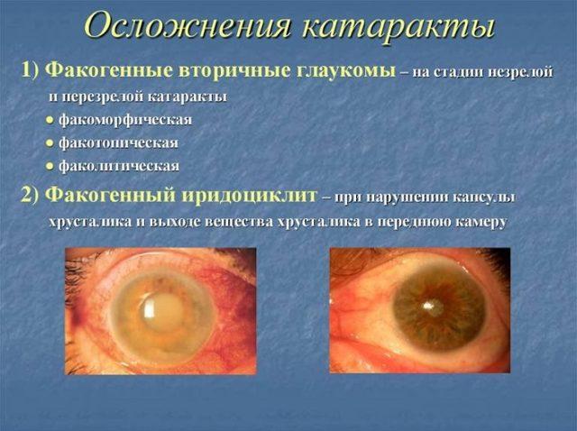 Эффективность баларпана в лечении глазных заболеваний