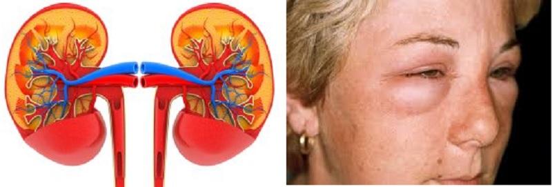 Нефротический синдром у детей - симптомы и лечение