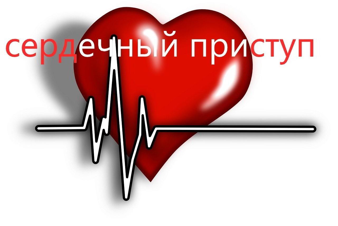 Как проходит сердечный приступ?