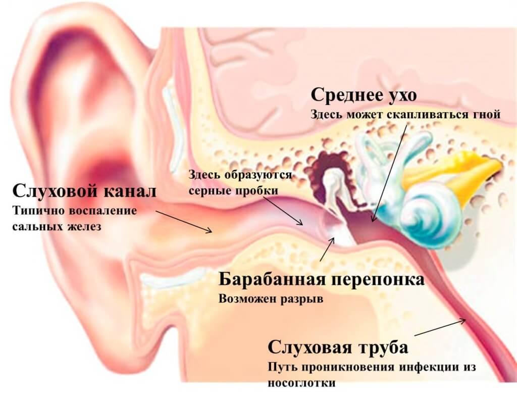 Как восстановить слух