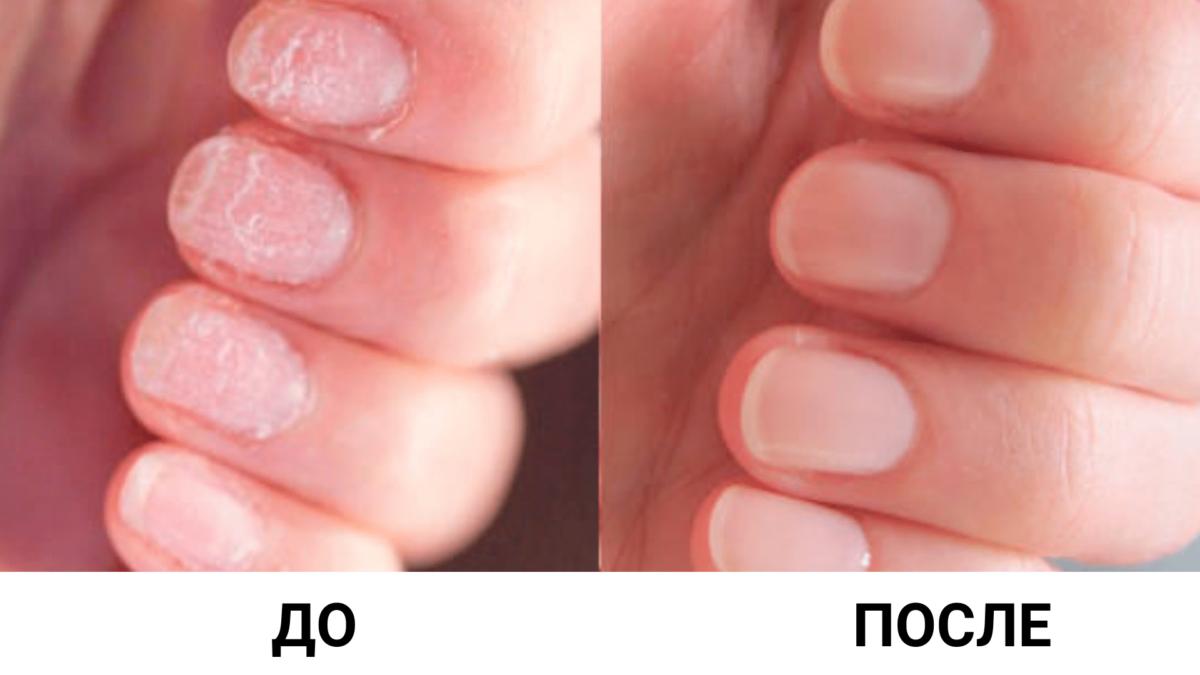 Лучшие домашние средства для ровных ногтей