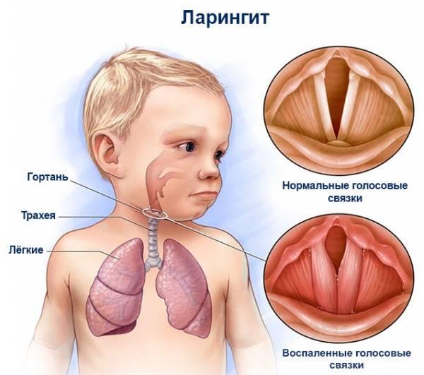 Признаки бронхита у ребенка