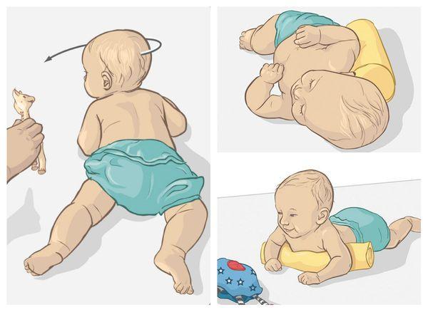 Кривошея у новорожденных грудничков и методы её лечения