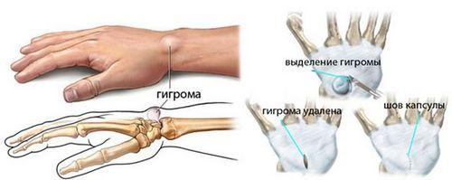 Что такое гигрома на запястье руки, почему возникает, как лечить