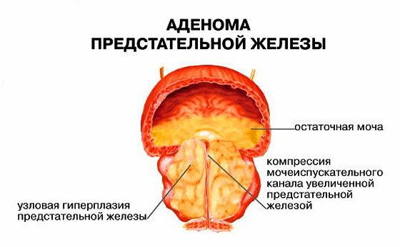 Симптомы и методы лечения аденомы простаты у мужчин