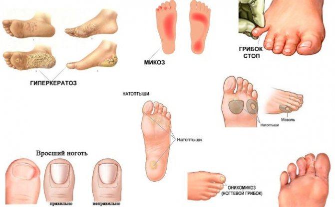 Грибок на ногах. как выглядит, почему возникает и как его лечить? :: polismed.com