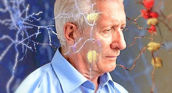 Глиоз головного мозга, очаги сосудистого генеза и иного