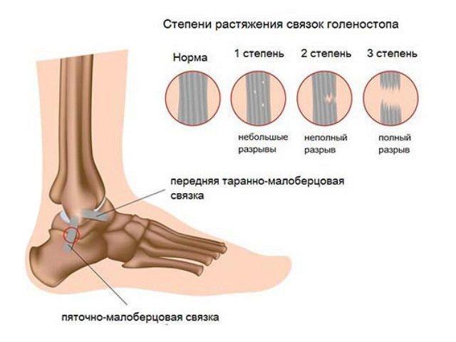 Разрыв связок коленного сустава: причины, симптомы, лечение
