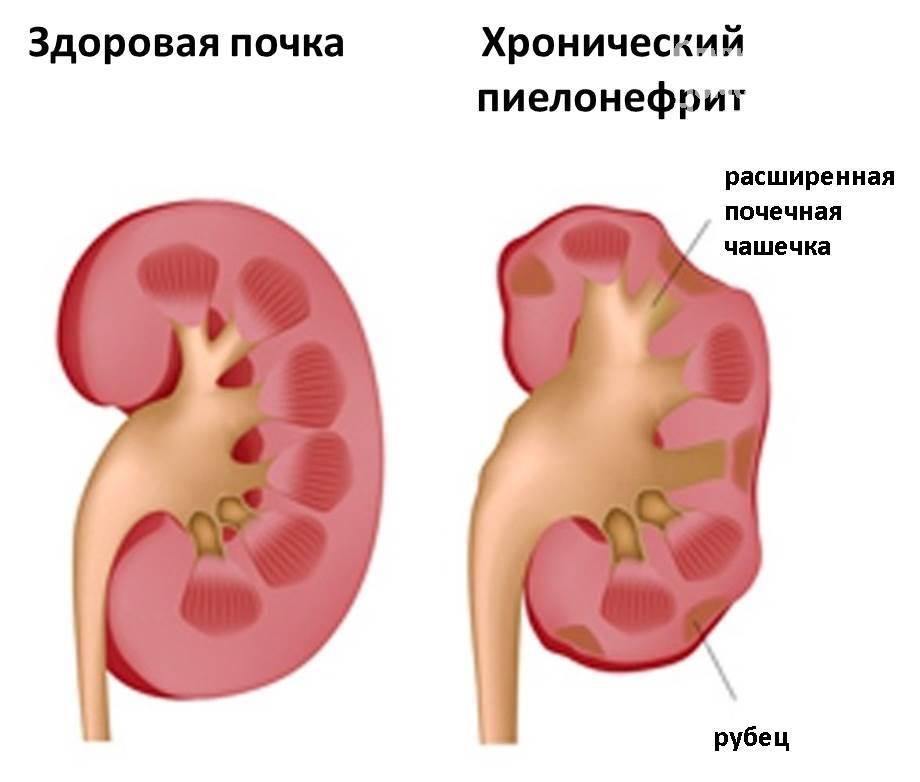 Гломерулонефриты и пиелонефриты: сходства и отличия