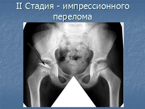 Болезнь пертеса у детей (остеохондропатия головки бедренной кости): лечение, стадии, симптомы / mama66.ru