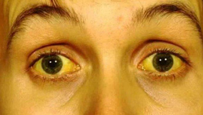 От чего цвет лица становится землистым. желтый цвет лица из-за неправильного питания. процедуры, которые можно получить в салоне