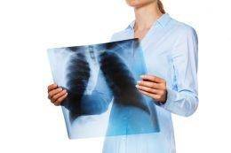 Как выявить туберкулез легких на ранних стадиях