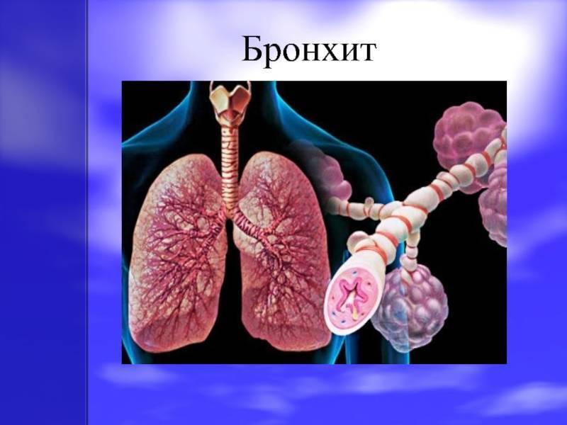 Лечение препаратами при обострении хронического бронхита