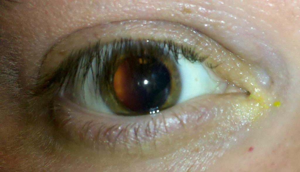 Чем опасно высокое глазное давление?