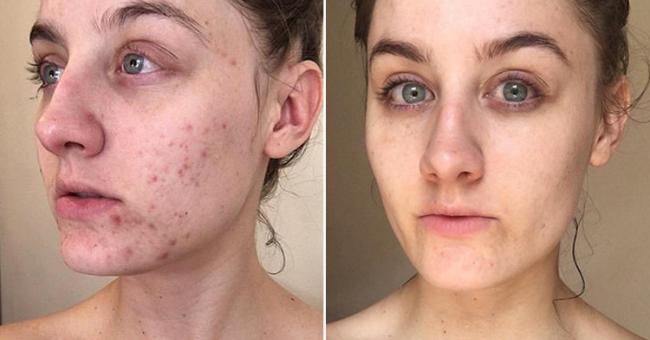 Ретиноевая мазь от морщин и возрастных дефектов кожи