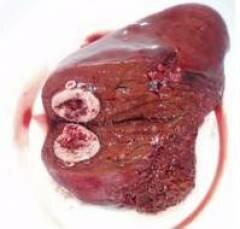 Гемангиома печени диета