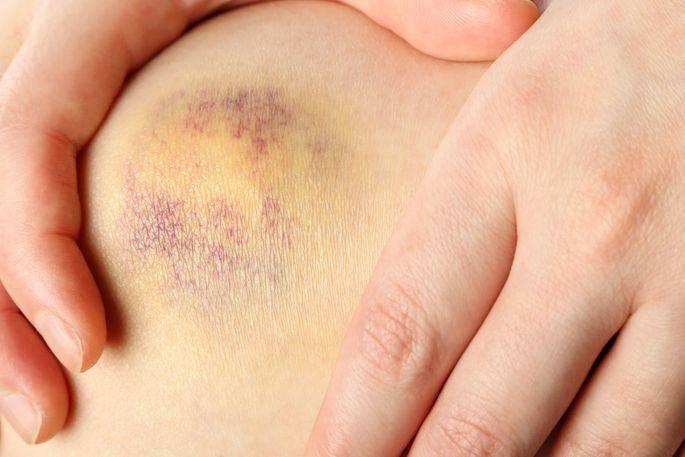 Как лечить гематому на ноге после ушиба