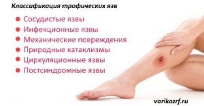 Как лечить трофические язвы на ногах народными средствами