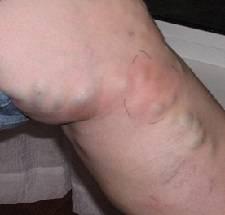Постинъекционный флебит вены на руке лечение
