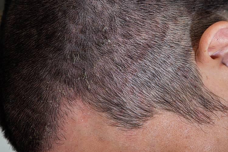 Грибок кожи головы: симптомы, причины, лечение