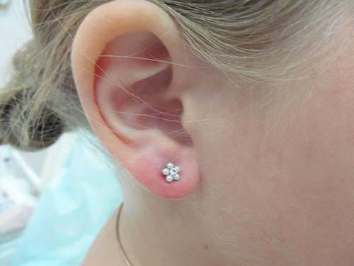 Причины и лечение, почему при надавливании может болеть мочка уха