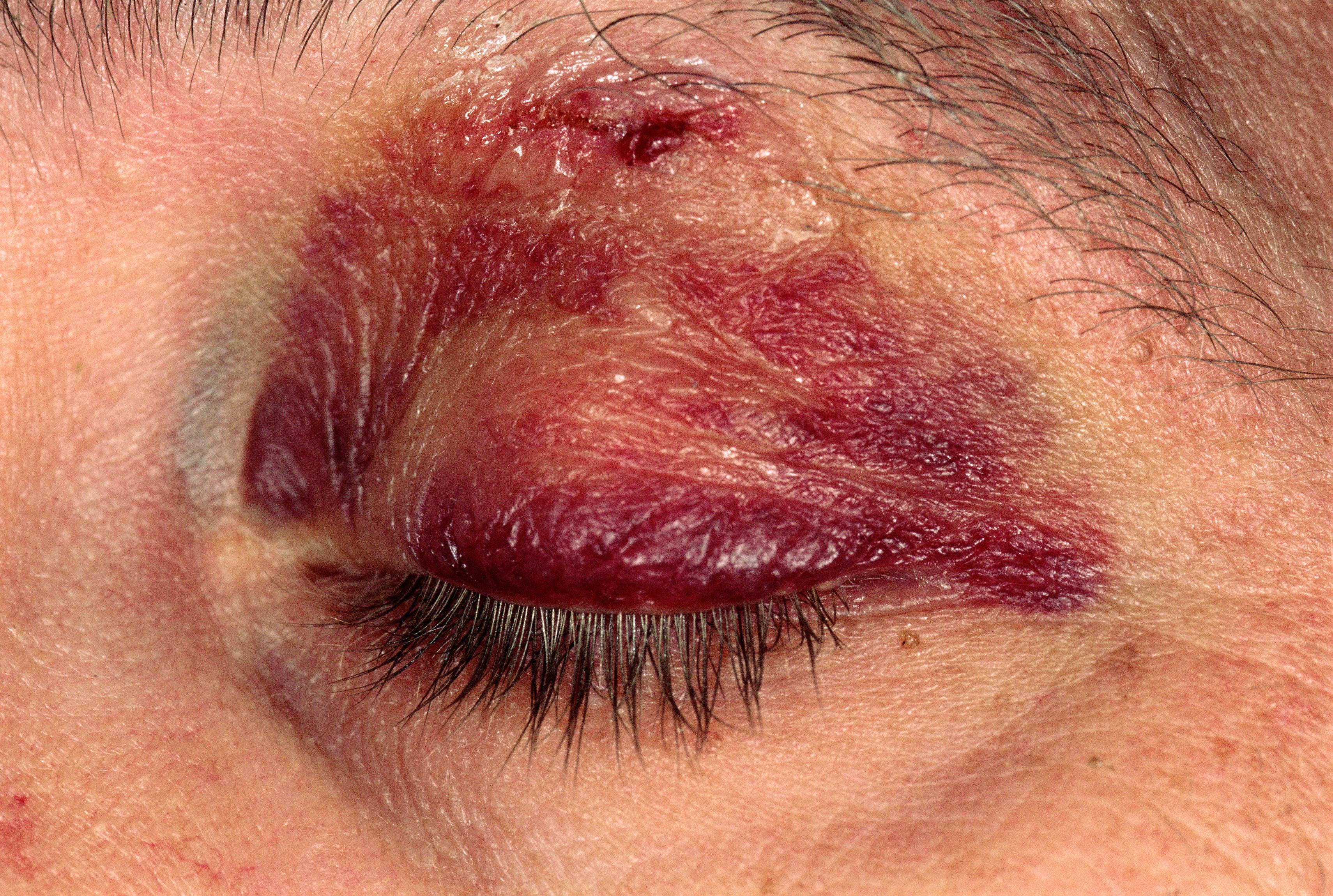 Гематома мягких тканей лечение. ушибы мягких тканей. средства от синяков и гематом