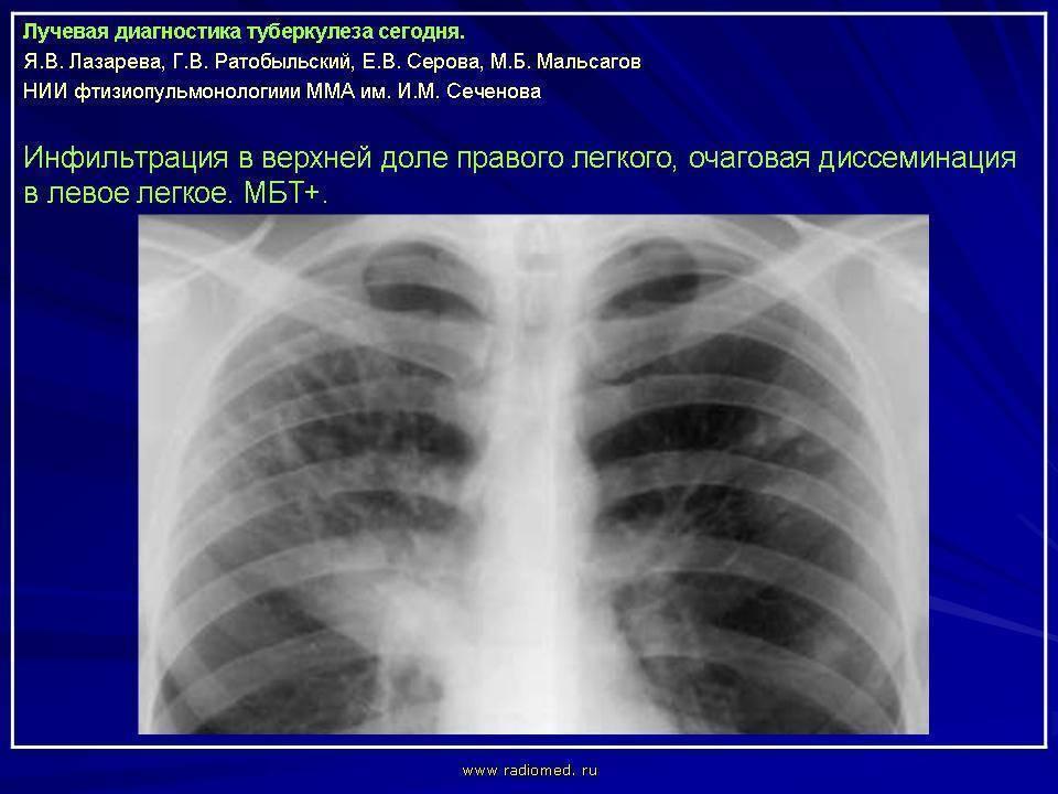 Чем отличается пневмония от туберкулеза и может ли одно заболевание перейти в другое?
