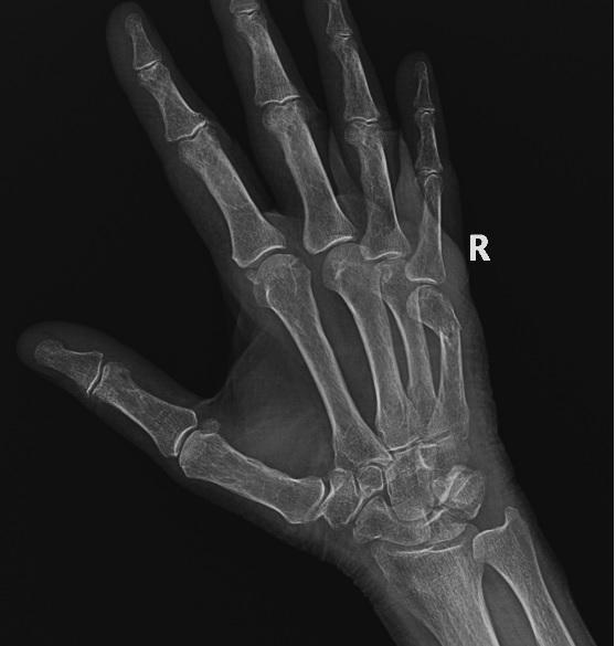 Переломы головки и шейки лучевой кости - симптомы болезни, профилактика и лечение переломов головки и шейки лучевой кости, причины заболевания и его диагностика на eurolab