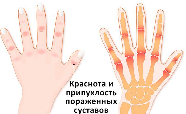 Как вылечить артрит суставов пальцев рук?