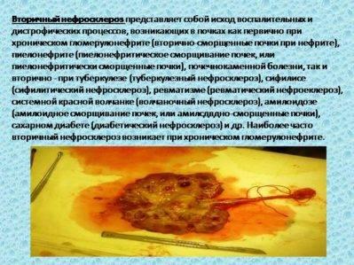 Особенности нефросклероза и способы лечения усохшей почки