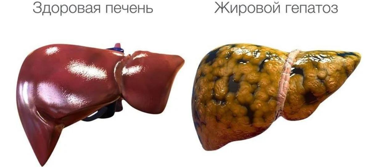 Какие фрукты можно есть при жировом гепатозе печени