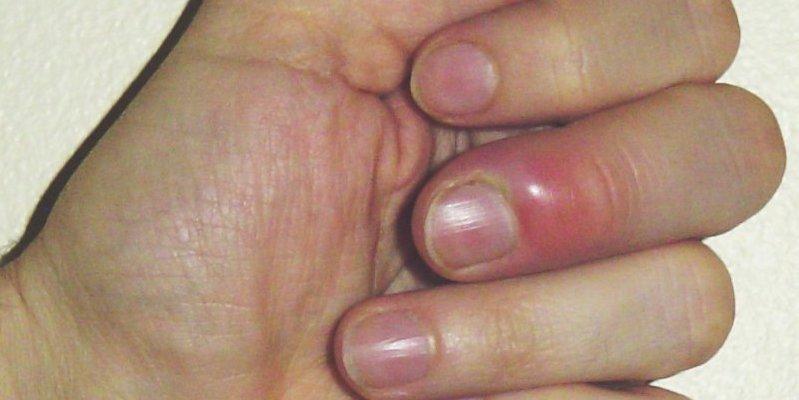 Заусенцы на пальцах у мужчин: чем лучше удалить? | красивые ногти - дополнение твоего образа