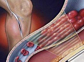 Какие могут быть осложнения тромбофлебита на ногах